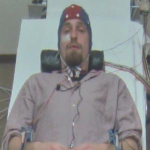 Julian Rotter EEG scan Medisch Spectrum Twente